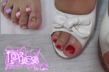Toe Nails Trauma: can Nails Extension be the Solution