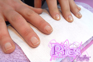 Nails Problems: which behaviours can damage Nails? | Pics Nails
