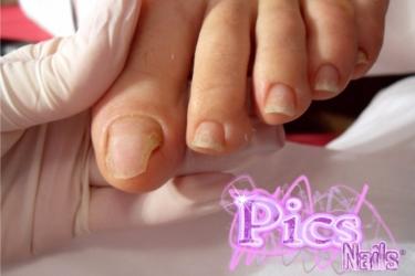 Rimedi efficaci di trattamento di un fungo di pelle
