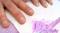 Nails Problems: which behaviours can damage Nails?