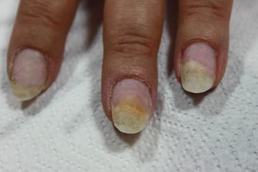 onicolisi dell'unghia