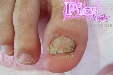 Toe Nails Problems