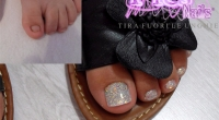 Toe Nails Trauma: can Nails Extension be the solution?
