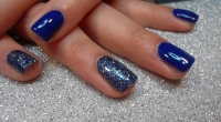 What is Gel Nail Casting?